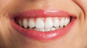 Cuidados-com-os-Dentas